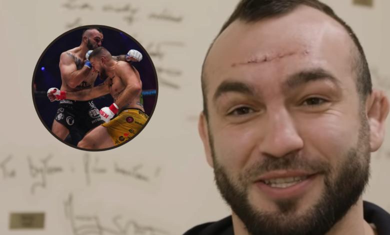 Marcin Krakowiak podczas walki z Kacprem Koziorzębskim na KSW 57 doznał złamania kości czołowej. Zawodnik przeszedł operację [WIDEO]